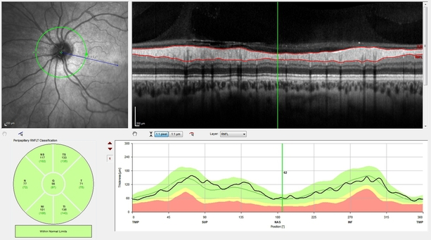 Heidelberg spectralis 4d OCT Optical Coherence Tomographer eye scan examinationof retinal nerve fibre RNFL thickness for early glaucoma detection at opticians Buchanan Optometrists, Kent