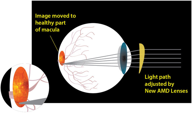 How E-scoop lenses improve vision for Macular degeneration